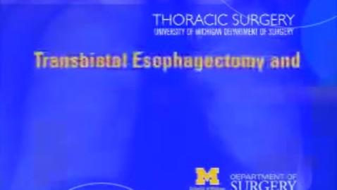 Thumbnail for entry Transhiatal Esophagectomy and Cervical Esophago - Gastric Anastomosis - Full-length video