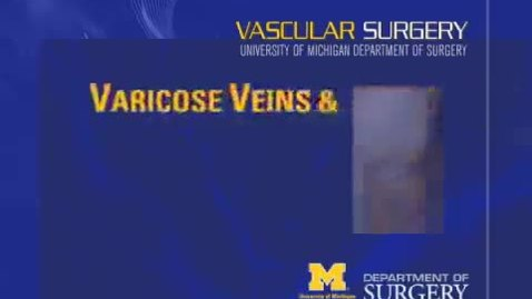 Thumbnail for entry Learn About Varicose Veins and Chronic Venous Insufficiency