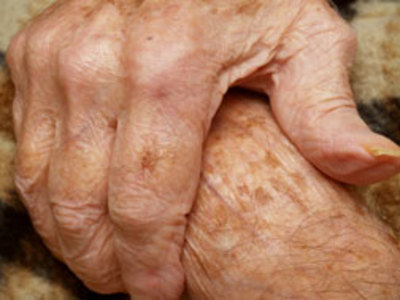 Films Media Group - Assessing Skin Conditions in the Elderly