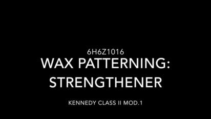 Kennedy Class II Mod  1 - Wax patterning: Strengthener - mmutube