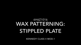 Thumbnail for entry Kennedy Class II Mod.1: Wax patterning - Stippled plate