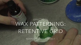Thumbnail for entry Kennedy Class II Mod. 1 - Wax patterning: Retentive grid