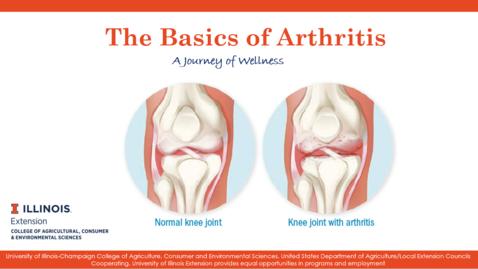 Thumbnail for entry Presentation_Inflammation and Arthritis: The Basics of Arthritis