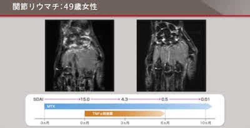 RA画像診断マスターコース 第1回「RA画像診断マスターコース」