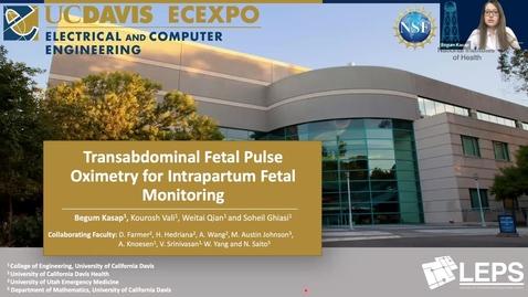 Thumbnail for entry Transabdominal Fetal Pulse Oximetry for Intrapartum Fetal Monitoring