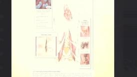 Thumbnail for entry Febbre e Rachialgie