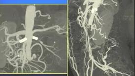 Thumbnail for entry Ipertensione arteriosa resistente in giovane donna: opzioni di trattamento alla luce dei risultati dello studio ASTRAL