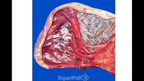 Thumbnail for entry GYN Sex-Cord Stromal and Epithelial Tumors