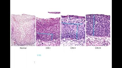 Thumbnail for entry GYN Lab - Vulva & Cervix