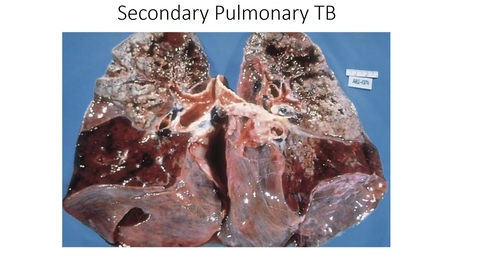 Thumbnail for entry Pulmonary infections