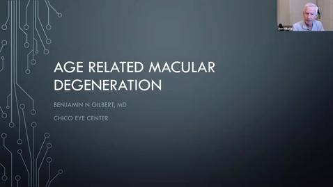 Thumbnail for entry The Aging Eye Series, Week 4: Macular Degeneration