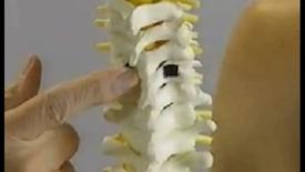 Thumbnail for entry POMM1 - Cervical Spine