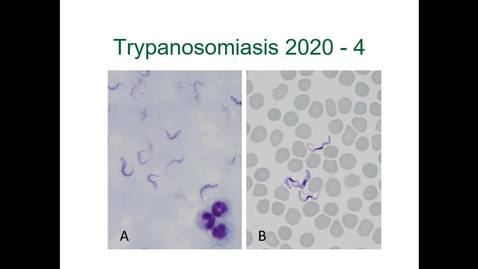 Thumbnail for entry IM618 - Trypanosomiasis 4: Immune Evasion, Control and Prevention