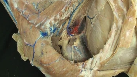 Thumbnail for entry VM 518-Left side of thorax structures visible after removal of lungs