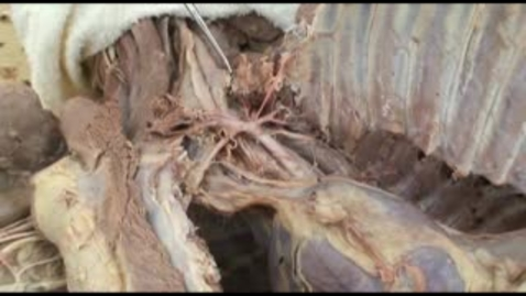 Thumbnail for entry VM 518-Thoracic nerves and vessels (2)