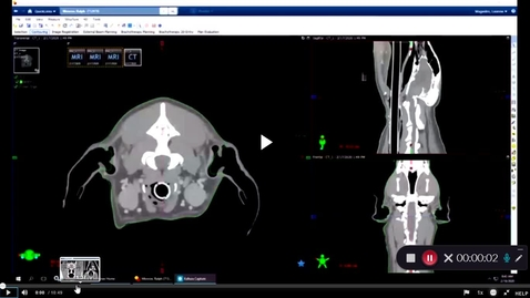 Thumbnail for entry VM 571-Accelerated radiation treatment planning- canine brain tumor