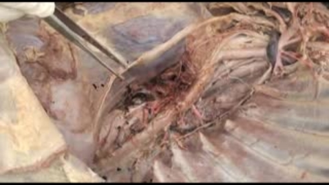 Thumbnail for entry VM 523-Lymphatic structures of thorax. Dissection video
