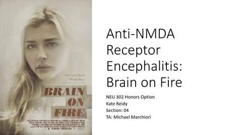 Thumbnail for entry Kate Reidy NEU 302 Honors Option FINAL