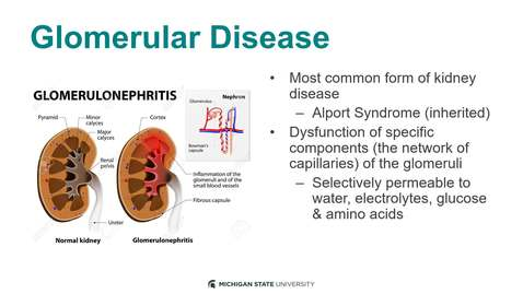 Thumbnail for entry Glomerular Disease 2020 Recording 3