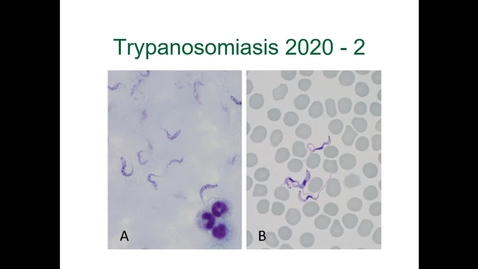 Thumbnail for entry IM618 - Trypanosomiasis 2: Clinical Presentation and Diagnosis