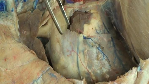 Thumbnail for entry VM 518-Left side of thorax heart and related structures